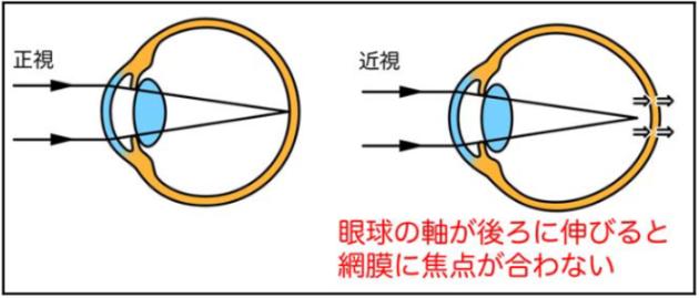 眼球の軸が後ろに伸びると網膜に焦点が合わない